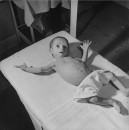 A baby in the Children's Hospital suffering from a combination of Jaundice and anemia caused by RH incompatibility.